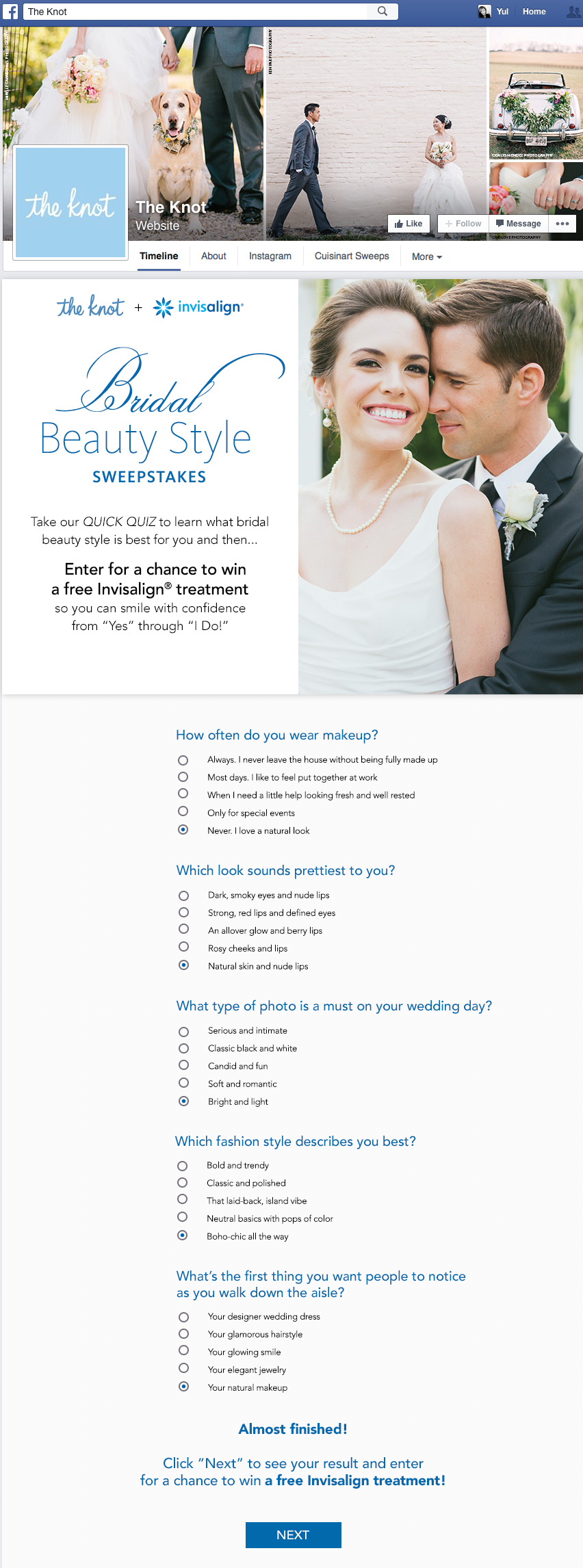 Invisalign_Facebook-Sweeps_questions